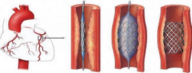 آیا آنژیوپلاستی به بهبود بیماری های قلبی کمک میکند ؟