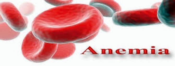 با نشانه های کم خونی اشنا شوید