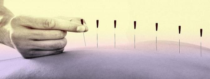 آیا طب سوزنی در کاهش درد های ناشی از فیبرومیالژیا موثر است ؟