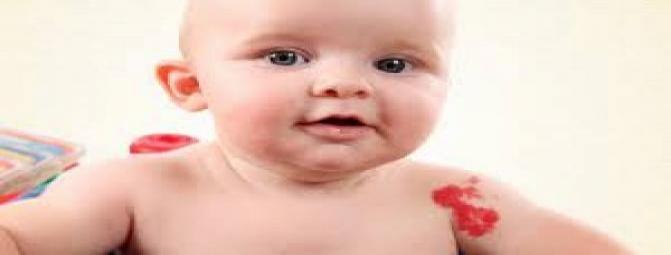 انواع لک های پوستی مادرزادی کدامند ؟