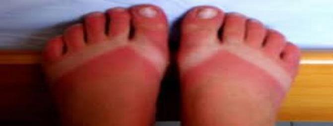 آفتاب سوختگی چه خطراتی برای پوست دارد ؟