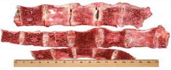 ارتباط سرطان پروستات با مشکلات استخوان