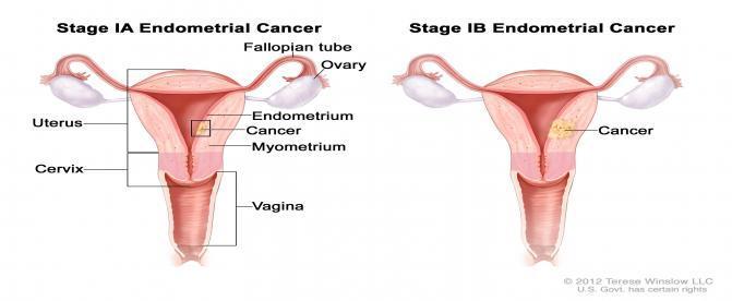 سرطان آندومتر چيست؟