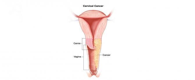سرطان واژن چيست؟
