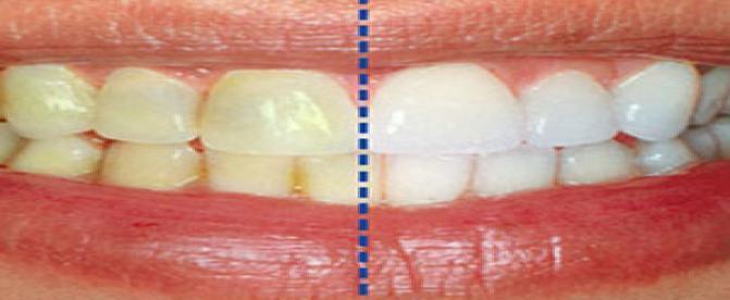 جرم دندانی چیست؟