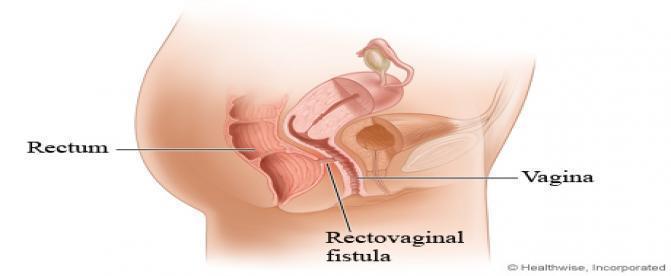 آنچه بايد درباره فيستول واژن بدانيد!