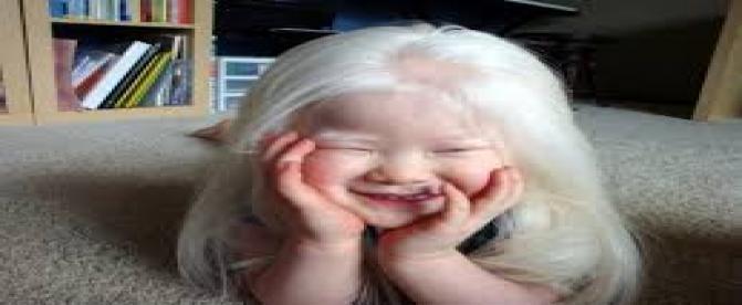 نقص های مادرزادی - زالی (آلبینیسم)