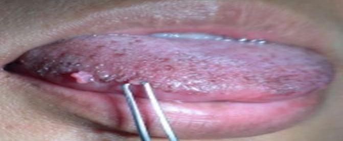 لکه های سیاه روی زبان نشانه چیست؟