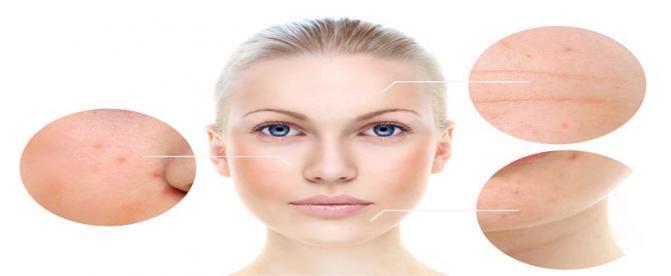 ذهن چه نقشی در بروز بیماری های پوستی دارد ؟