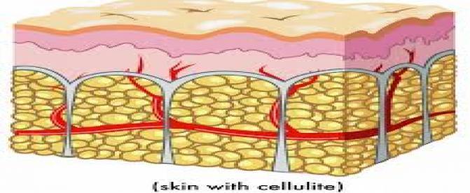 آیا میتوان با سلولیت های بدن مبارزه نمود ؟