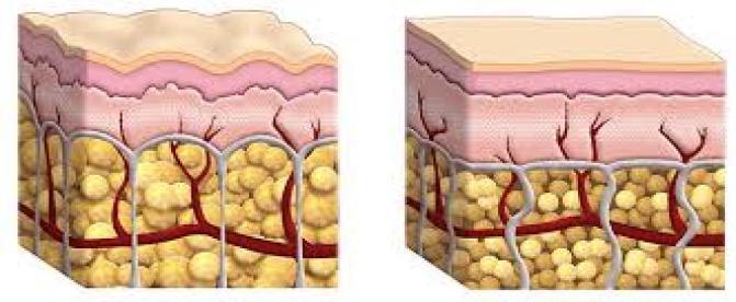 بهترین روش رفع سلولیت چیست ؟