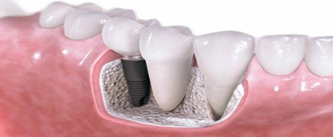 سوالات متداول در مورد ایمپلنت دندان ( بخش اول)