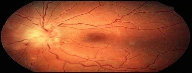 توکسوپلاسموز چشمی