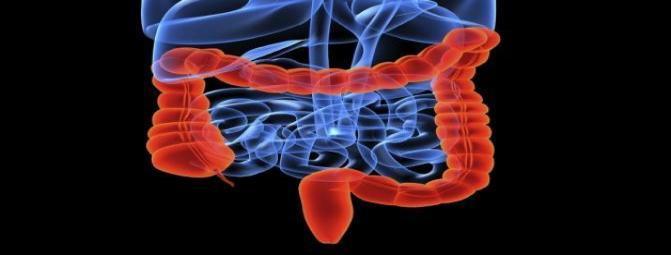 با بیماری کولیت اولسراتیو آشنا شوید !