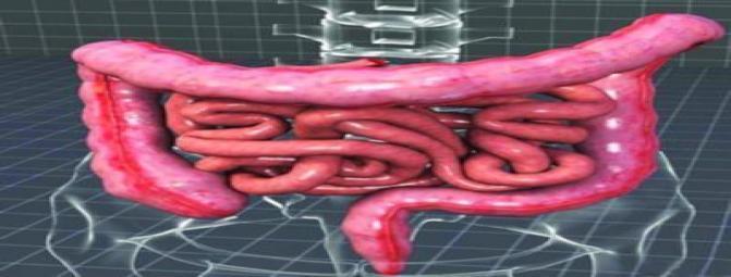 عوامل موثر در شکل گیری پولیپ و یا سرطان روده بزرگ