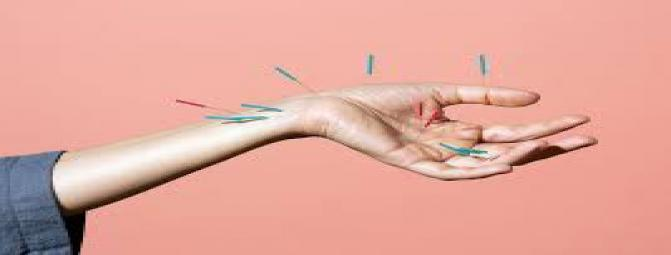 آنچه باید در خصوص طب سوزنی بدانید