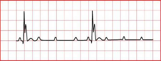 برادی کاردی (کند تپشی ،کاهش میزان ضربان قلب ) چیست ؟