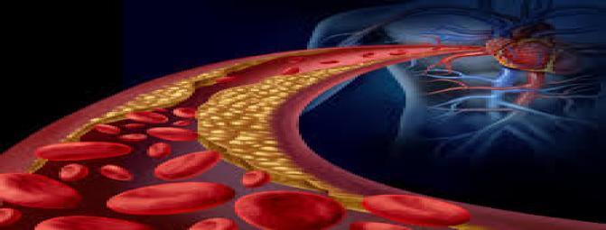 بیماری های عروق محیطی (PAD ) و امکان نقص عضو