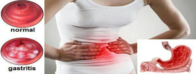 گاستریت یا التهاب معده چیست؟