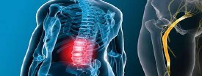درمان فیزیکال و تمرین های ورزشی برای سیاتیک