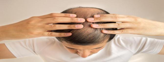 کاشت مو | هزینه کاشت مو در ایران | بهترین مرکز کاشت مو