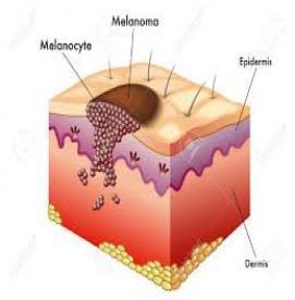 خطرناکترین نوع سرطان پوست کدام است ؟