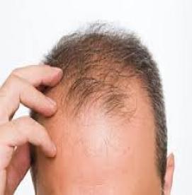 رابطه ریزش مو و تستوسترون