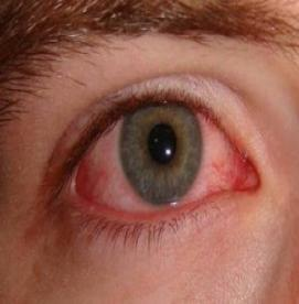 آیا چشم صورتی مسری است؟