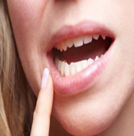 نشانه های زخم دهان چیست؟