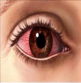 آلرژی چشمی