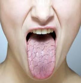آیا زبان هم دچار سرطان می شود؟