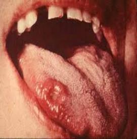 بیماریهای مقاربتی - سیفلیس