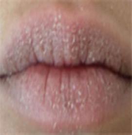 بهداشت دهان و دندان و خشکی دهان