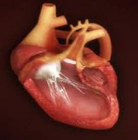 نقص های مادرزادی - درمان سندرم هیپوپلاژی سمت چپ قلب