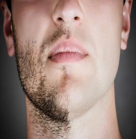 تعداد جلسات لازم برای لیزر موهای زائد بدن