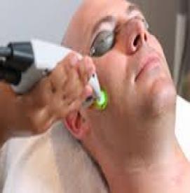 شایعاتی عجیب و باورنکردنی در مورد لیزر موهای زائد