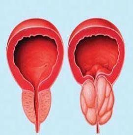 چه کسانی  باید به طور منظم برای سرطان پروستات تحت مراقبت قرار گیرند ؟