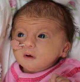نقص های مادرزادی - سندرم ادواردز