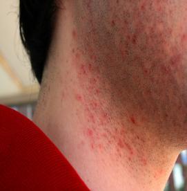 چگونه لیزر به رفع پسودوفولیکولیت (برامدگی های ناشی از  شیو )کمک میکند ؟