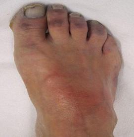 بیماری عروق کلاژن
