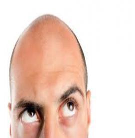 ریزش مو در آقایان و دلایل آن