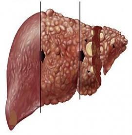 چه عواملی باعث سرطان کبد می شود ؟