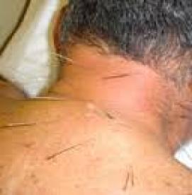 طب سوزنی و بهبود گردن درد
