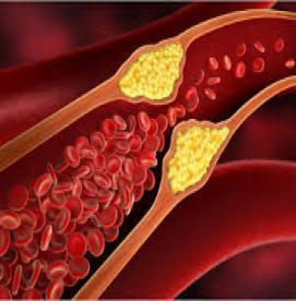 چه ارتباطی بین تصلب شرایین و فشار خون وجود دارد ؟