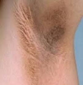 درمان های خانگی برای ازبین بردن تیرگی پوست زیربغل  (قسمت اول)