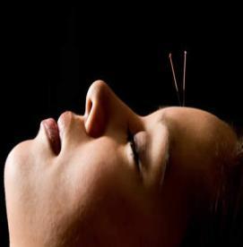 آیا طب سوزنی میتواند یبوست شدید را بهبود بخشد ؟