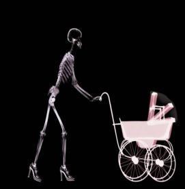 همه چیز درباره قرار گرفتن در معرض اشعه ایکس در دوران بارداری