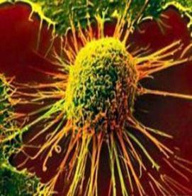 لوسمی ، نوعی سرطان خون با علایم خاموش (2)