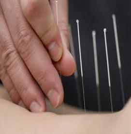طب سوزنی،روشی شگفتآور در درمان انواع بیماریها