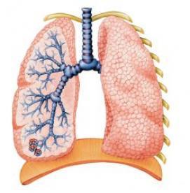 علل موثر در بروز سرطان ریه